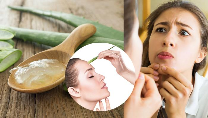 Best Herbal Remedies to Prevent Pimples