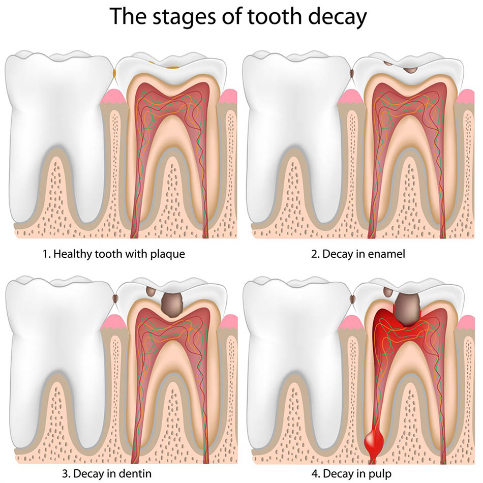 The Early Signs of Tooth Decay