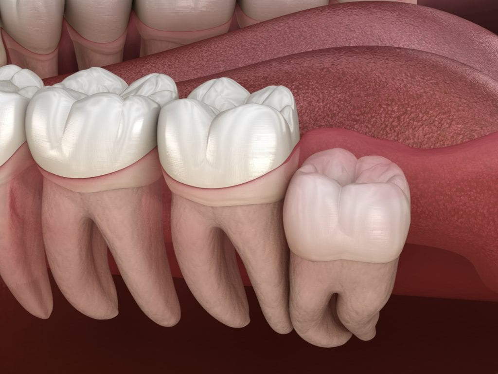 How to Prevent Full Impaction
