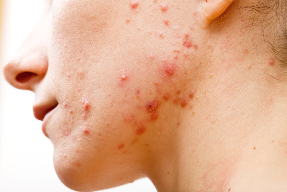 Acne Face Treatment – Stop Acne From Affecting Your Pimples
