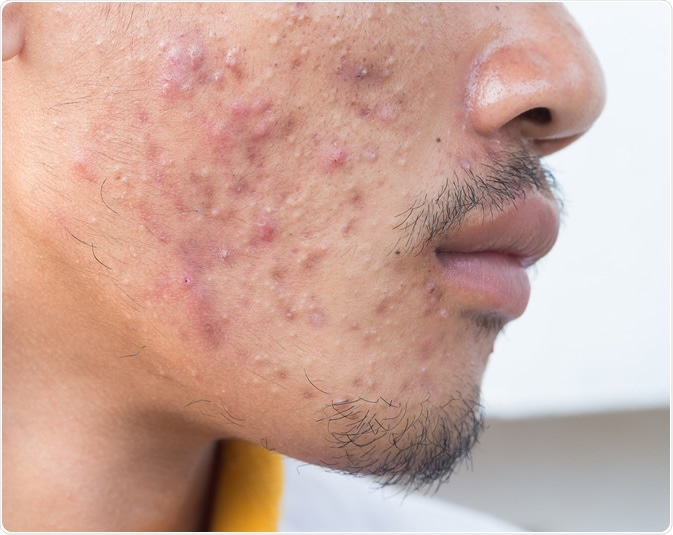 Acne – What it is and How to Treat It
